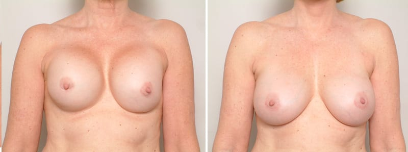 Before & After Breast Implant Correction, San Francisco CA