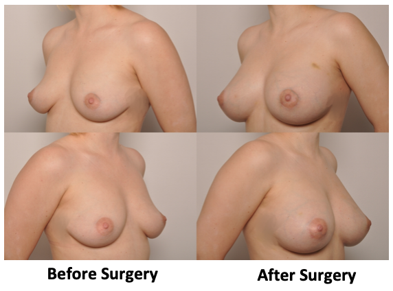 , Fat Grafting Breast