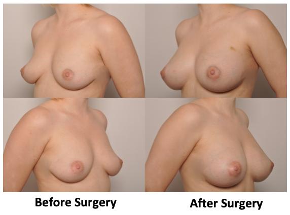 , Fat Grafting Breast